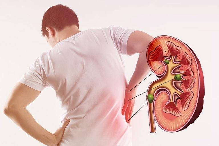 Đau lưng là một trong những biểu hiện của tình trạng thận âm yếu