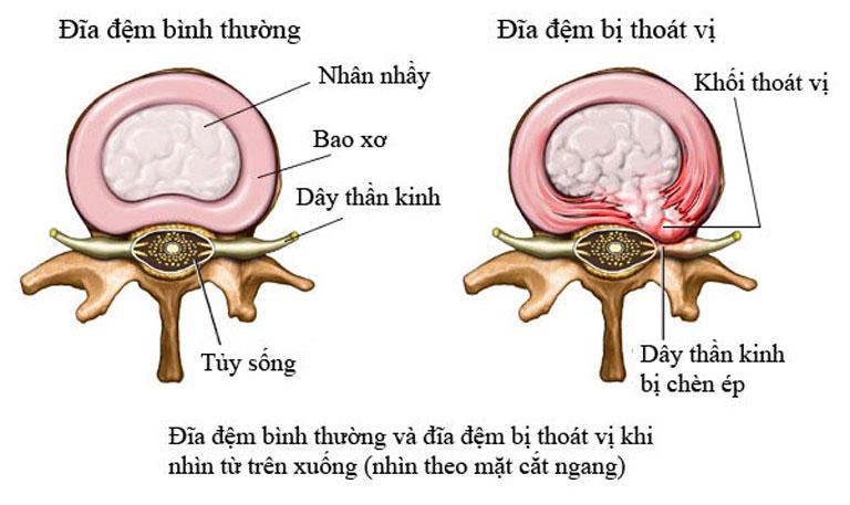 Rách bao xơ đĩa đệm là giai đoạn bệnh bắt đầu trở nặng của thoát vị đĩa đệm